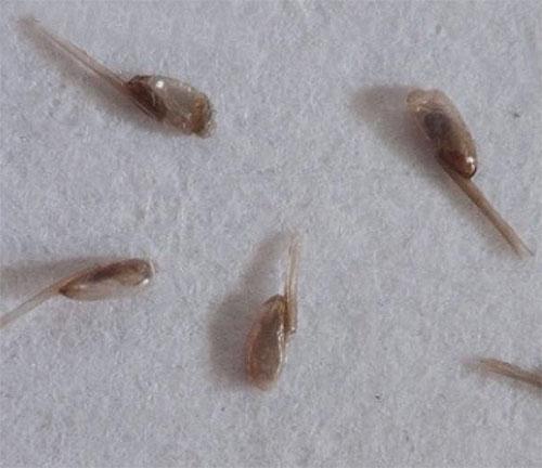 Как избавиться от мертвых гнид на волосах?