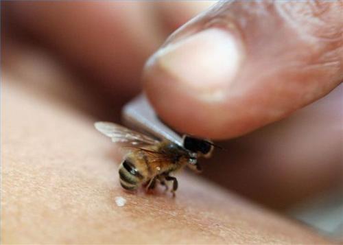 Как снять опухоль от укуса пчелы или если укус осы как снять отек